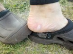 One of Mike's many blisters